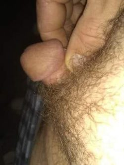 Micropenis